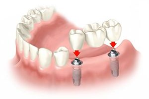 implanty szczecin