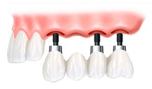 most na implantach szczecin