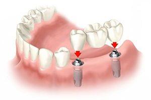 odbudowa protetyczna na implantach szczecin