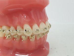 złoty aparat ortodontyczny szczecin